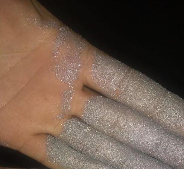 aluminum powder deox
